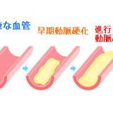 粥腫(じゅくしゅ)